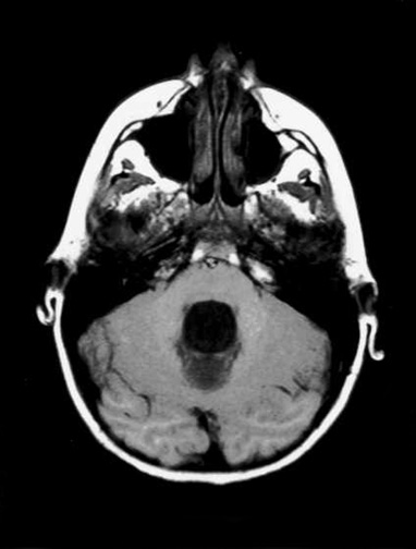 Noncommunicating obstructive hydrocephalus caused by obstruction of foramina of Luschka and Magendie. This MRI axial image demonstrates fourth ventricle dilatation.