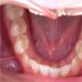 Diagnostika ortodontických anomálií na fotografiích chrupu, 1. díl