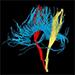 MR zobrazení tenzorů difuze centrálního nervového systému