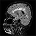 Roztroušená skleróza - diagnostika, léčba, diferenciální diagnostika