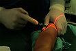 Záznam vybrané operační léčby v dětské chirurgii a neurochirurgii